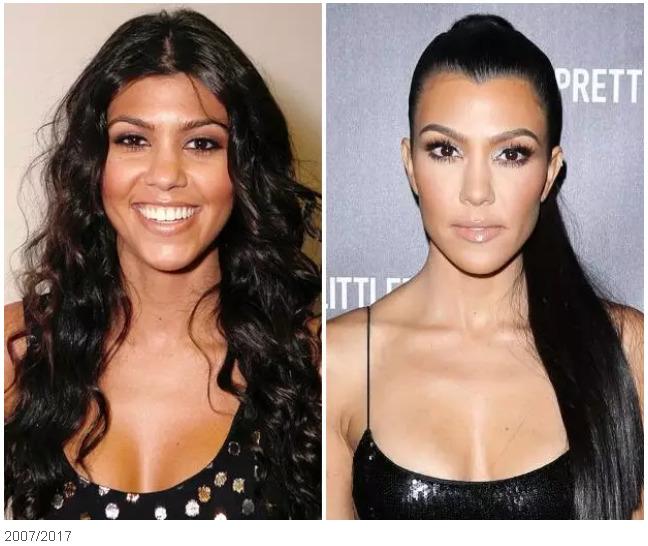 Кортни Кардашьян до и после пластики