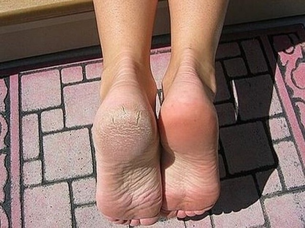 Огрубевшая кожа на пятках