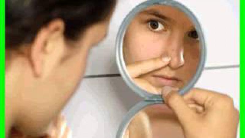 Cómo desvanecer las cicatrices del acné rápidamente