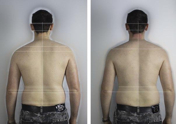 редактор фото для выравнивания спины