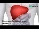 Первичный билиарный цирроз холангит