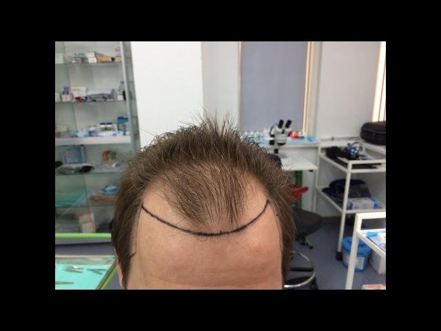 Продолжение видео от А до Я 3310 графт 10 месяцев после пересадки