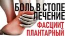 ПЯТОЧНАЯ ШПОРА   Лечение   Блокада   Plantar Fasciitis Injections
