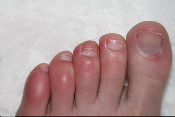Нарывает палец на ноге возле ногтя: лечение и профилактика