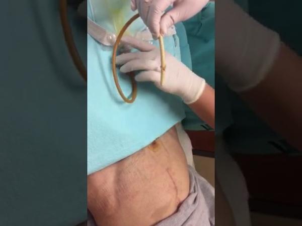Suprapubic Catheter Change
