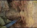 1.1 Step 7: Vertebral artery and suboccipital nerve