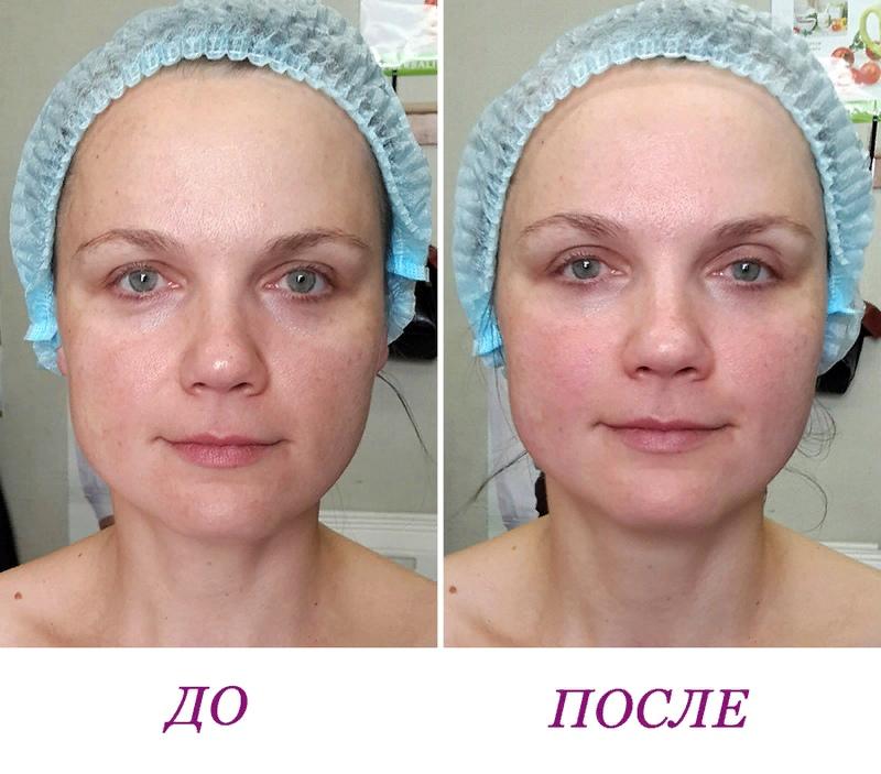 Массаж или филлеры для лица?, изображение №3