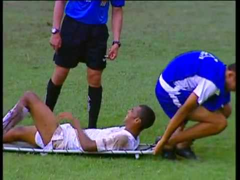 Maqueiro doidão senta na cara de jogador (Insane stretcher sits on players face)