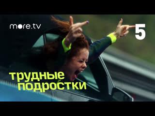 Трудные подростки | 2 сезон 5 серия