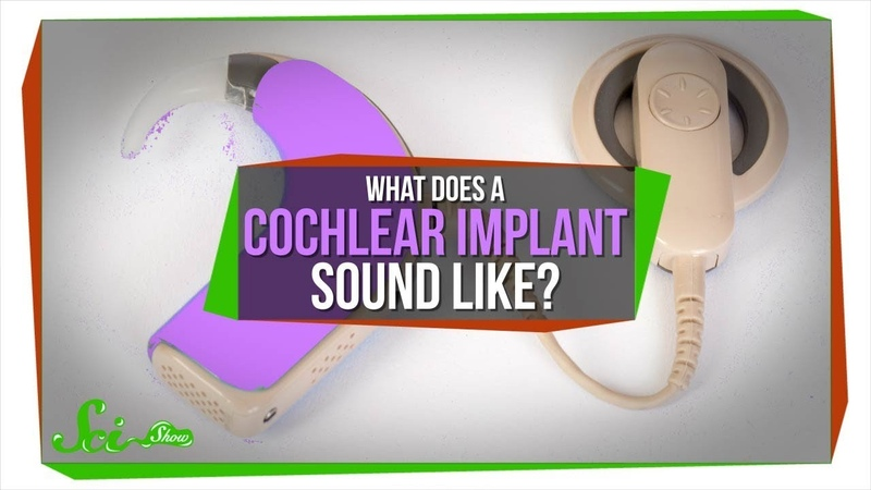 What Does A Cochlear Implant Sound Like